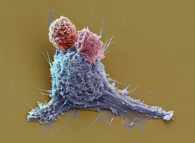 תא סרטני